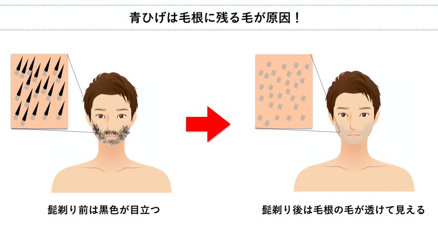 青髭は毛根に残る毛が原因