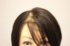 女性の薄毛のタイプ