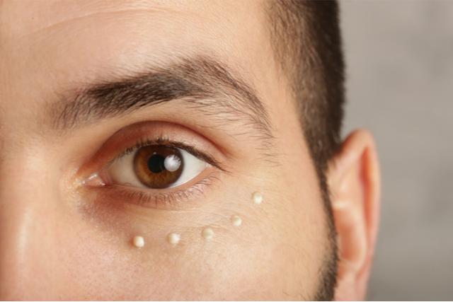 男性の目のたるみの原因