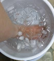 水虫に冷水は効果的か