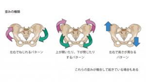 骨盤の歪みのパターン