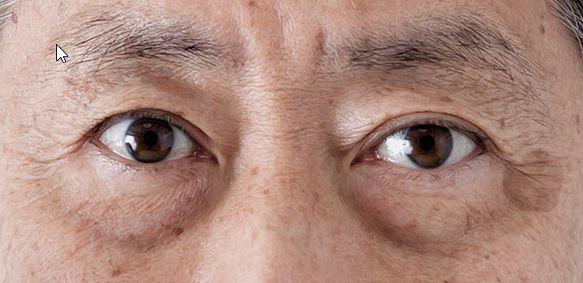 男性が老けて見えるのは目の下のたるみが原因